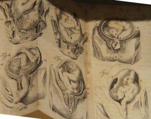 Medizinmuseum Museion: Alles analog, aber noch erhalten – Problemlagen bei Geburten (Bild: Dörte Sasse)